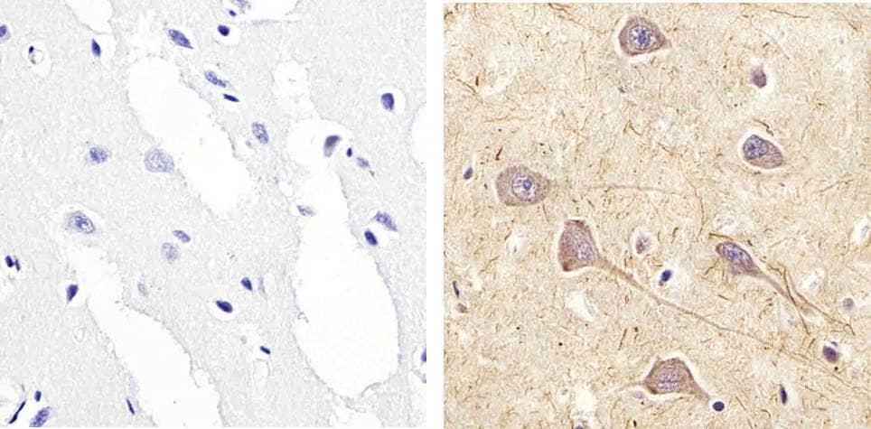 Phospho-RSK1 (Ser221) Antibody in Immunohistochemistry (Paraffin) (IHC (P))