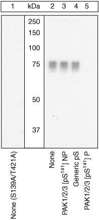 Phospho Pak1 2 3 Ser141 Antibody