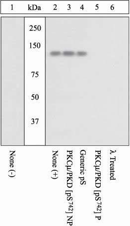 Phospho-PKC mu (Ser742) Antibody in Western Blot (WB)