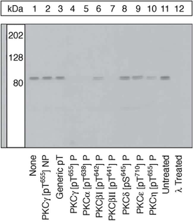Phospho-PKC gamma (Thr655) Antibody in Peptide array