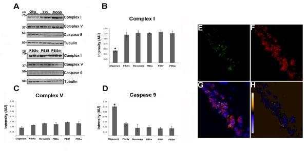 ATP5H Antibody