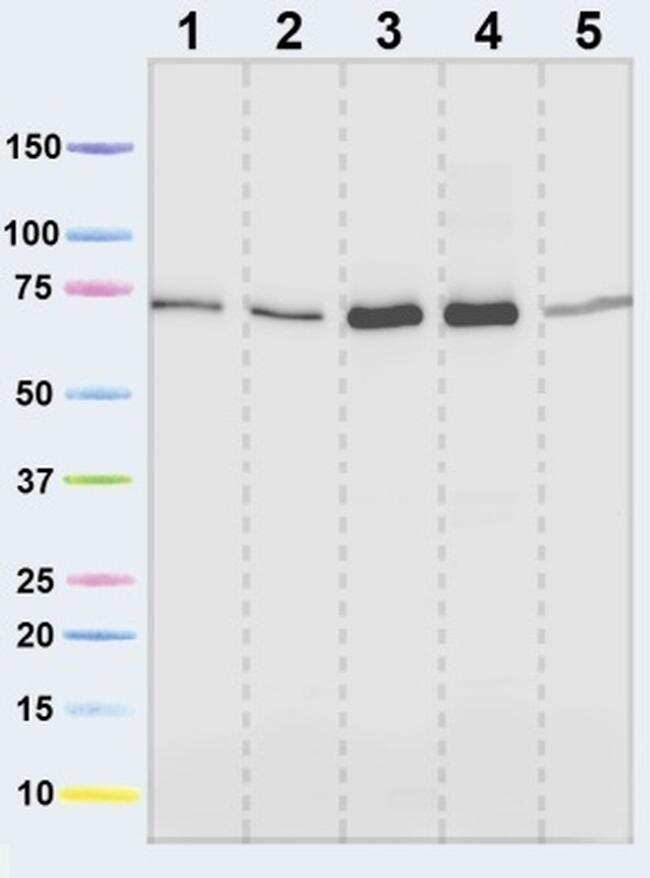 SDHA Antibody in Western Blot (WB)