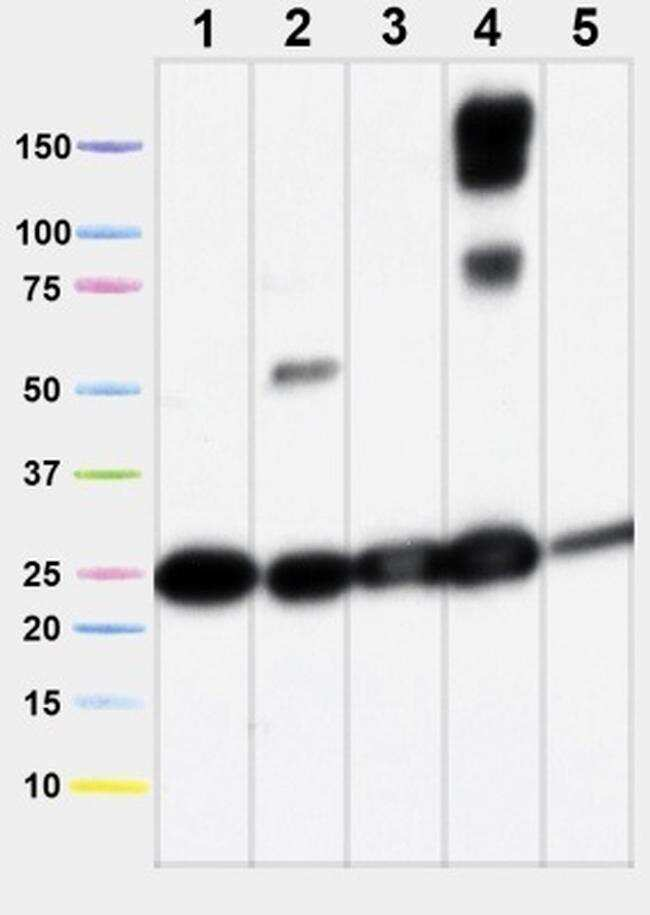 SDHB Antibody in Western Blot (WB)