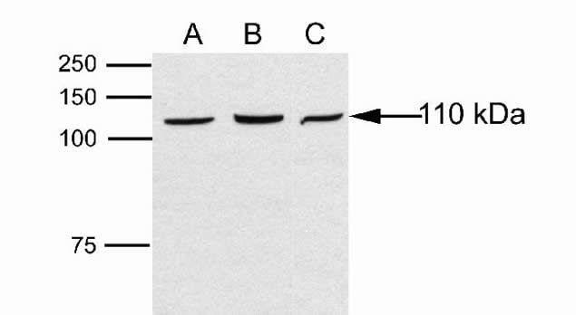 DAB2IP Antibody in Western Blot (WB)
