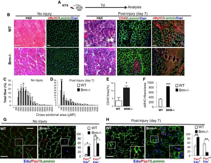 CD45 Antibody in Immunohistochemistry (IHC)