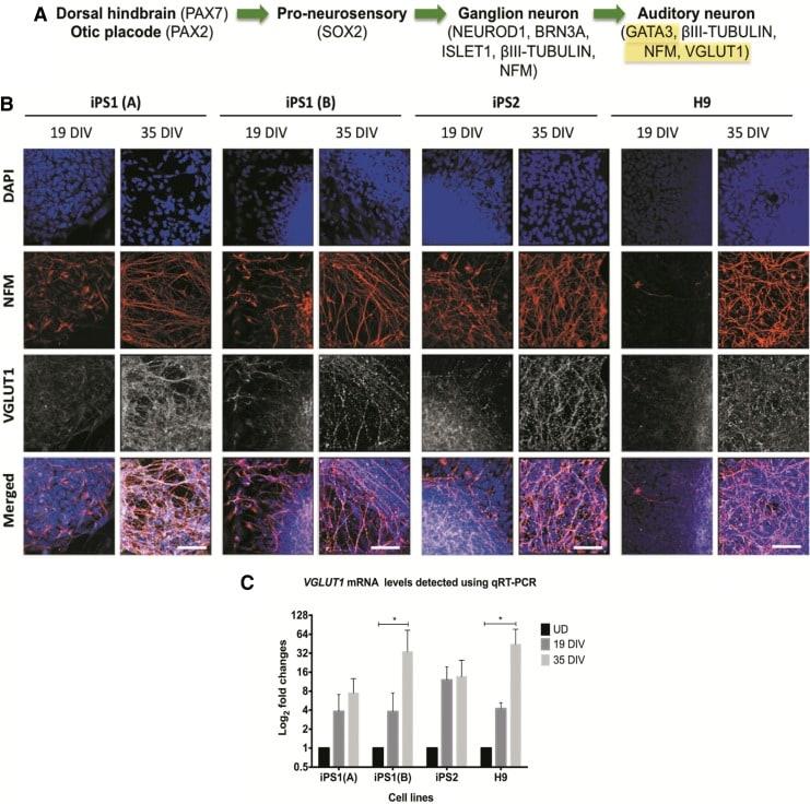VGLUT1 Antibody