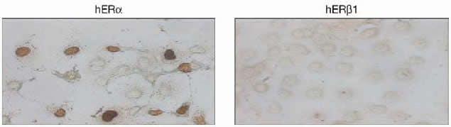 Estrogen Receptor alpha Antibody in Immunocytochemistry (ICC)