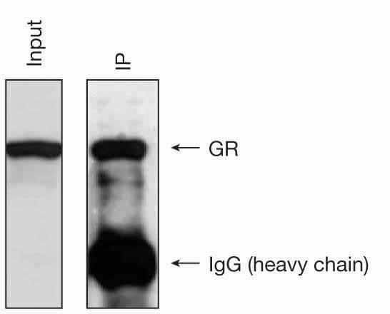 Glucocorticoid Receptor Antibody in Immunoprecipitation (IP)