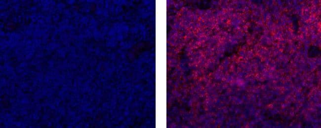 CD20 Antibody in Immunofluorescence (IF)