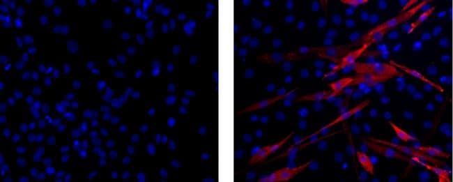 Myosin 4 Antibody in Immunocytochemistry (ICC)