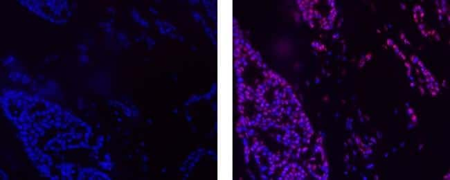 Cyclin E Antibody in Immunofluorescence (IF)