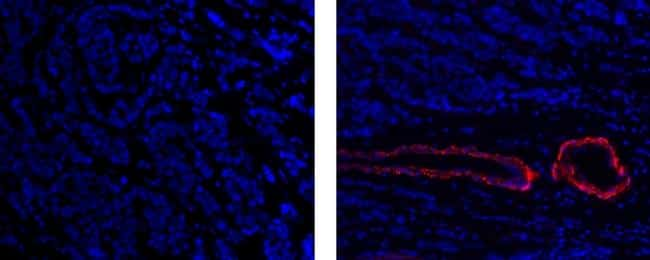 Alpha-Smooth Muscle Actin Antibody in Immunofluorescence (IF)