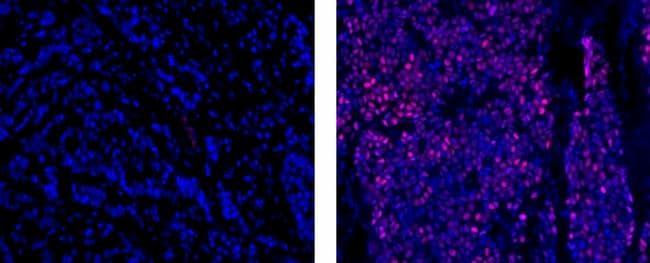 Progesterone Receptor Antibody in Immunohistochemistry (Paraffin) (IHC (P))