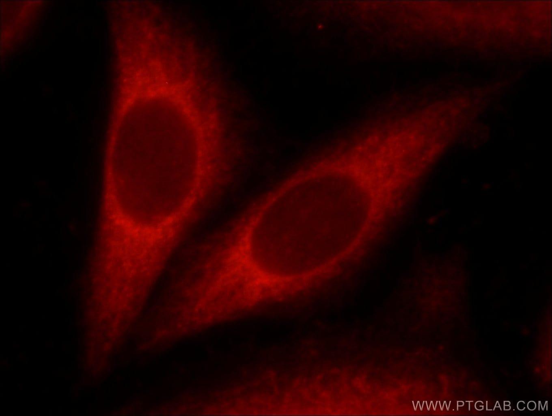 BAX Antibody in Immunocytochemistry (ICC/IF)