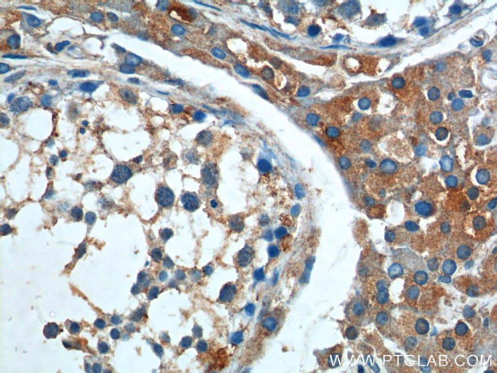 BAX Antibody in Immunohistochemistry (Paraffin) (IHC (P))