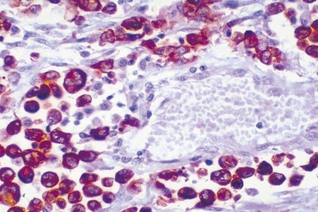 ALK Antibody in Immunohistochemistry (IHC)