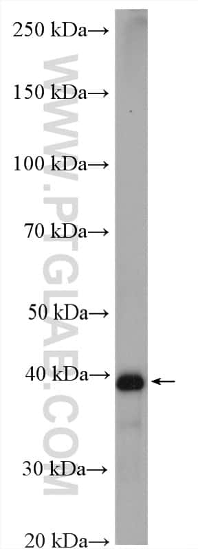 IST1 Antibody in Western Blot (WB)