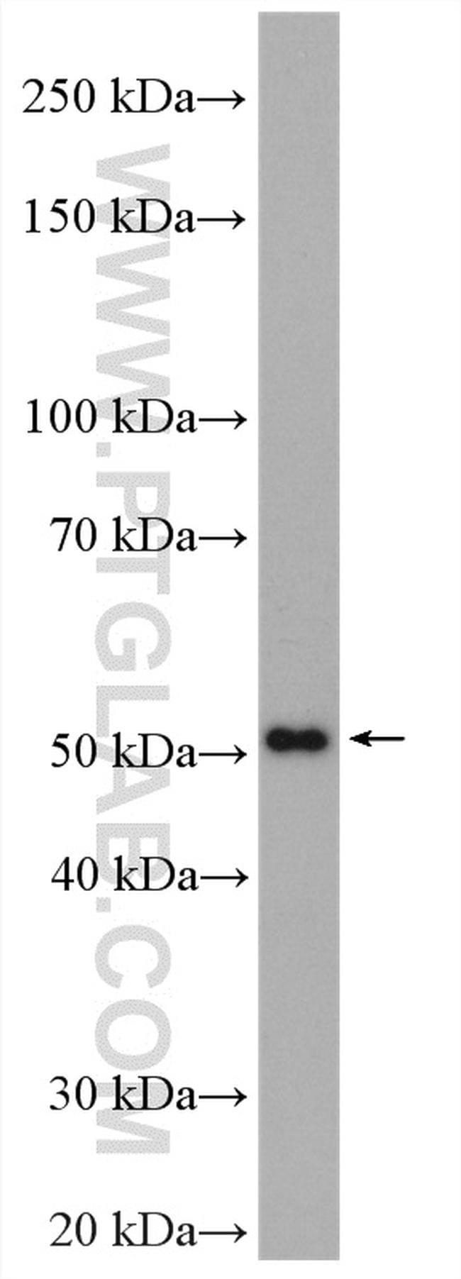 SPTLC2 Antibody in Western Blot (WB)