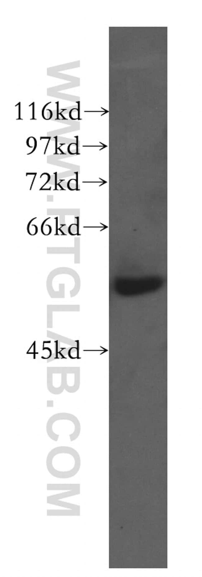 CTRP6 Antibody in Western Blot (WB)