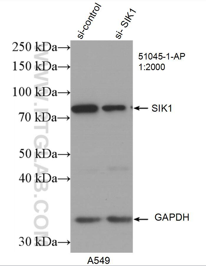 SIK1 Antibody in Western Blot (WB)