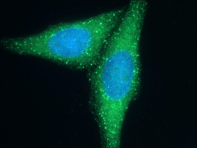 Cd2ap Antibody in Immunocytochemistry (ICC/IF)