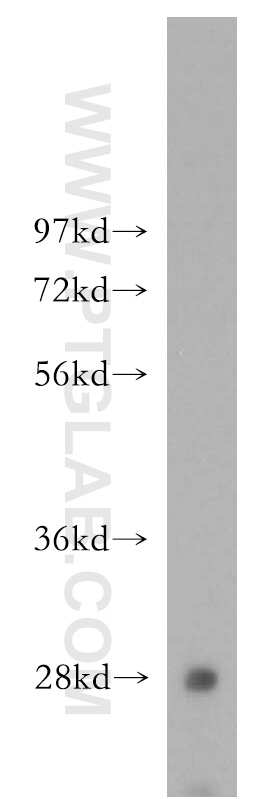 Hepsin Antibody in Western Blot (WB)