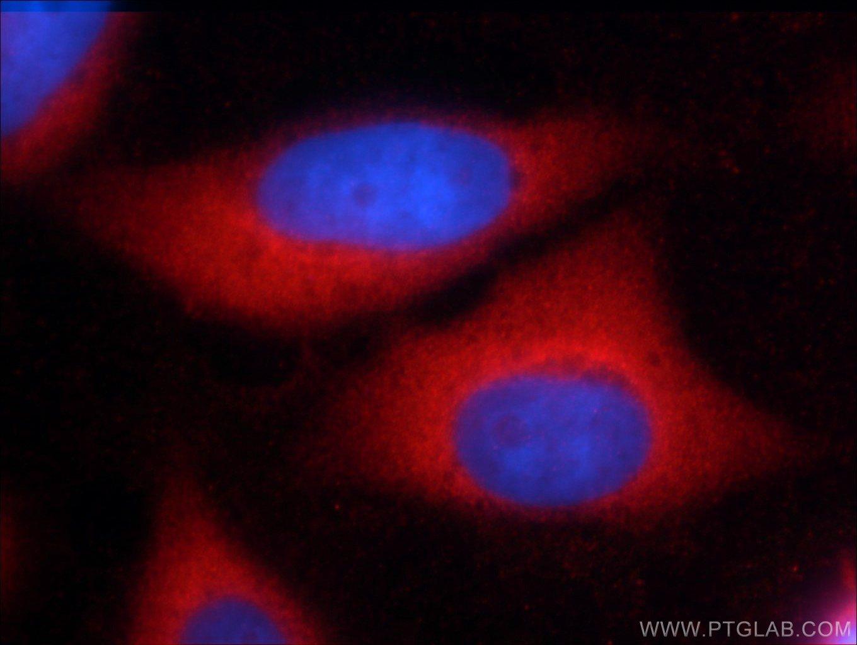 ERK1/2 Antibody in Immunofluorescence (IF)