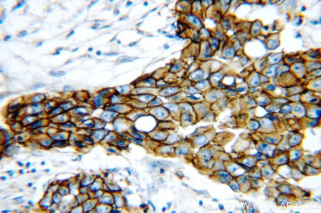 HER2/ErbB2 Antibody in Immunohistochemistry (Paraffin) (IHC (P))