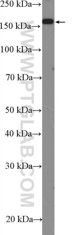 SRC 1 Antibody in Western Blot (WB)