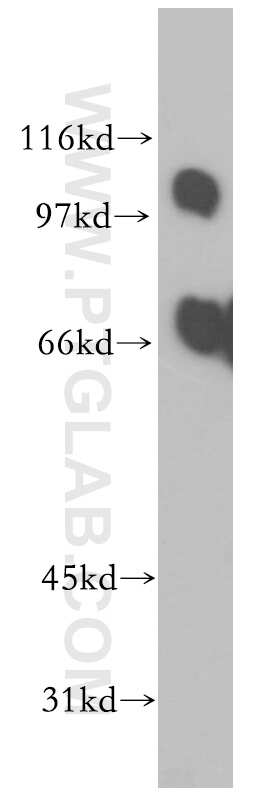 PPP1R13L Antibody in Western Blot (WB)