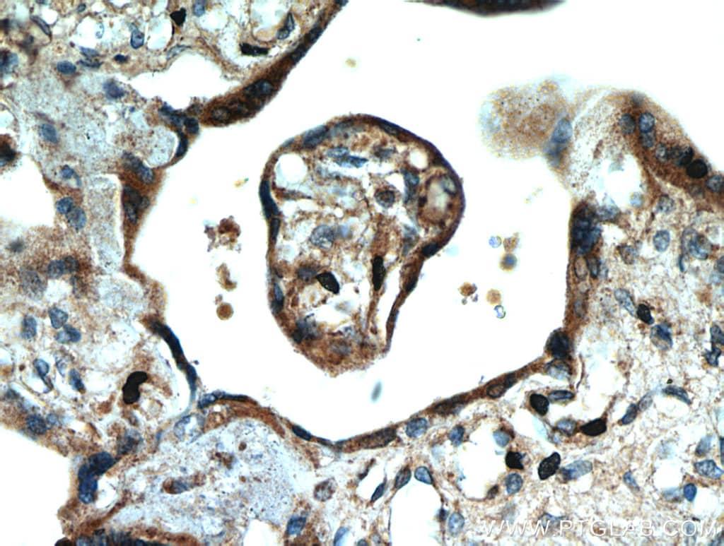 SMAD4 Antibody in Immunohistochemistry (Paraffin) (IHC (P))