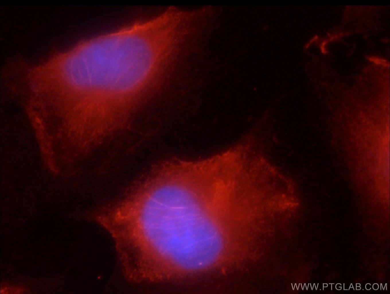 JNK2 Antibody in Immunofluorescence (IF)