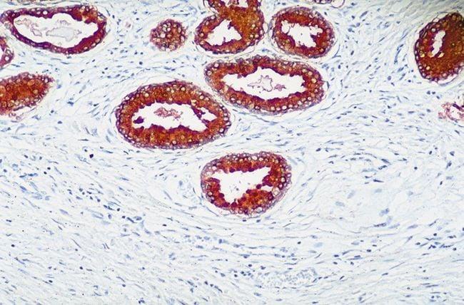 PTEN Antibody in Immunohistochemistry (IHC)
