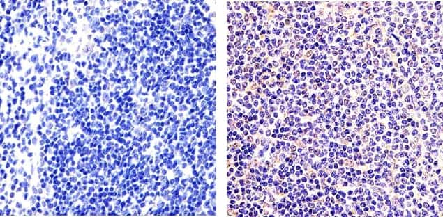 NFkB p50 Antibody in Immunohistochemistry (Paraffin) (IHC (P))