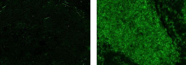CD20 Antibody in Immunohistochemistry (Paraffin) (IHC (P))
