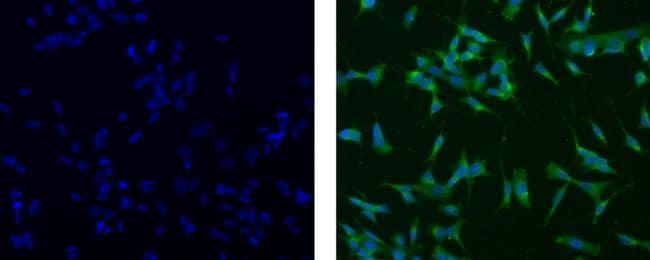 Nestin Antibody in Immunocytochemistry (ICC)
