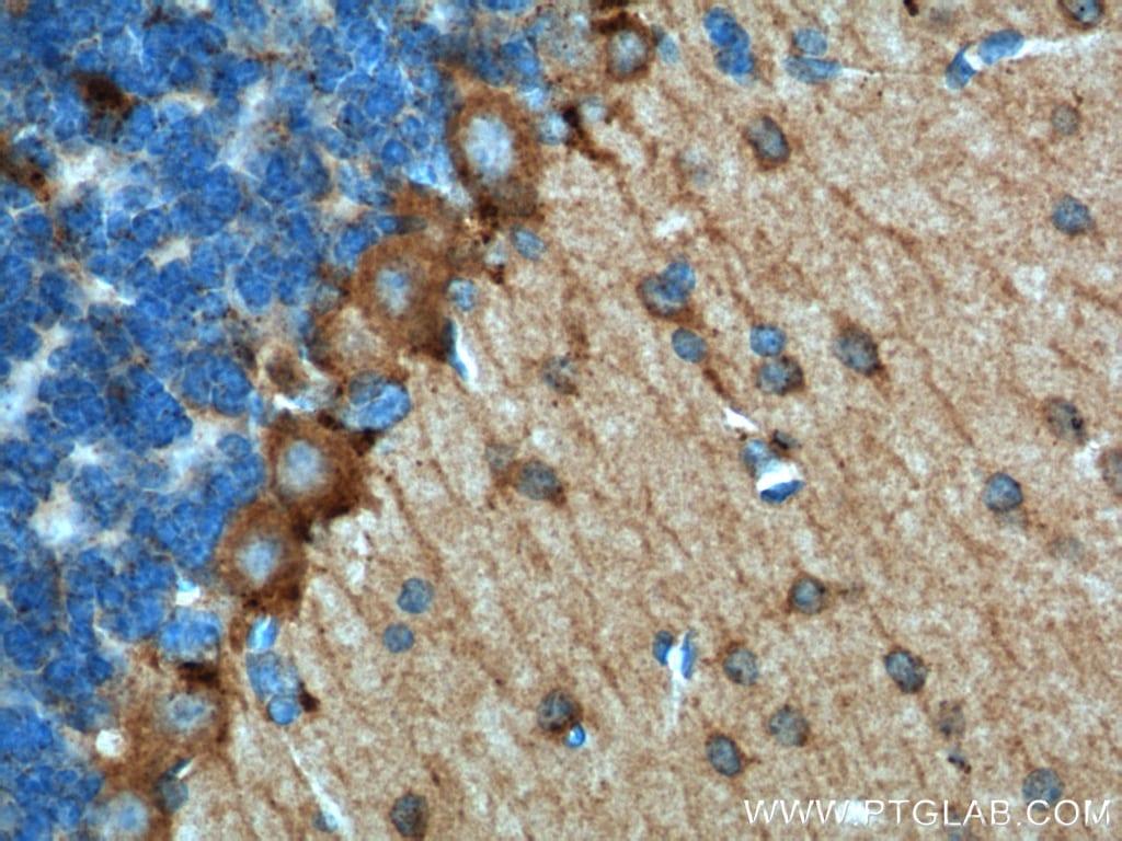 Adenosine A1 Receptor Antibody in Immunohistochemistry (Paraffin) (IHC (P))