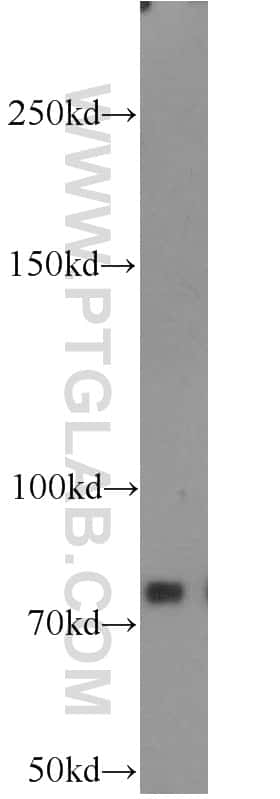 PFKM Antibody in Western Blot (WB)