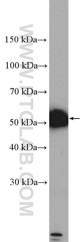 DRD2 Antibody in Western Blot (WB)