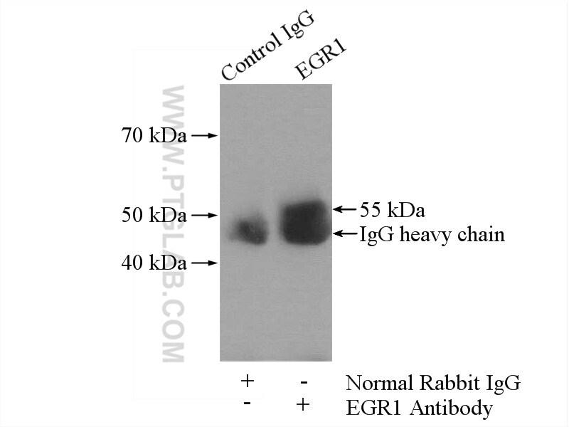 EGR1 Antibody in Immunoprecipitation (IP)