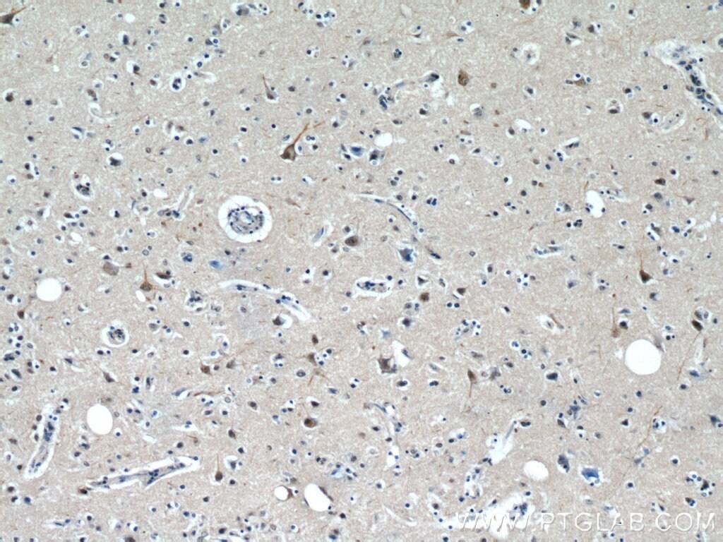 PPP1R9B Antibody in Immunohistochemistry (Paraffin) (IHC (P))