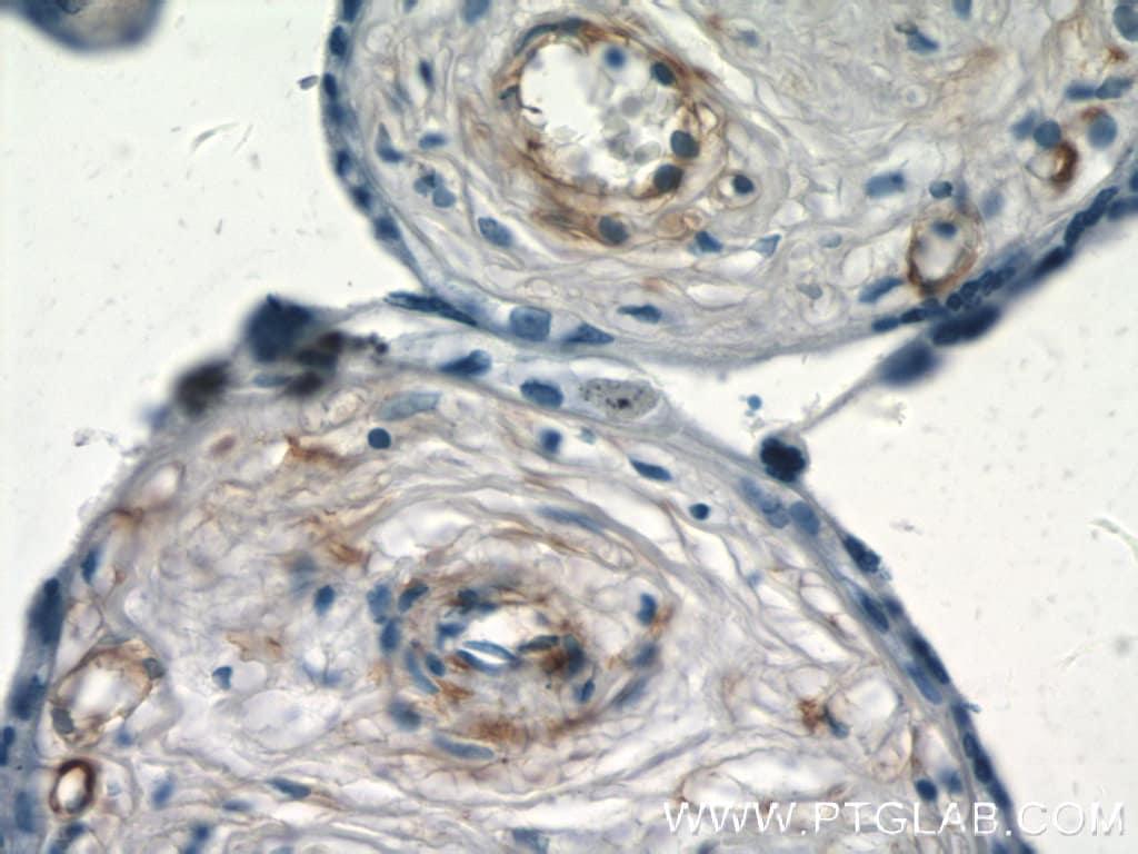 S1PR1/EDG1 Antibody in Immunohistochemistry (Paraffin) (IHC (P))