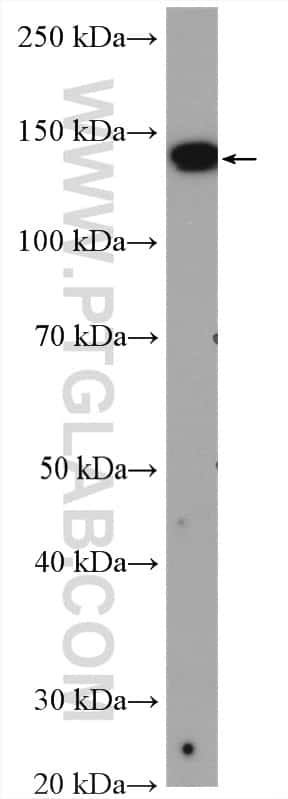 XDH Antibody in Western Blot (WB)