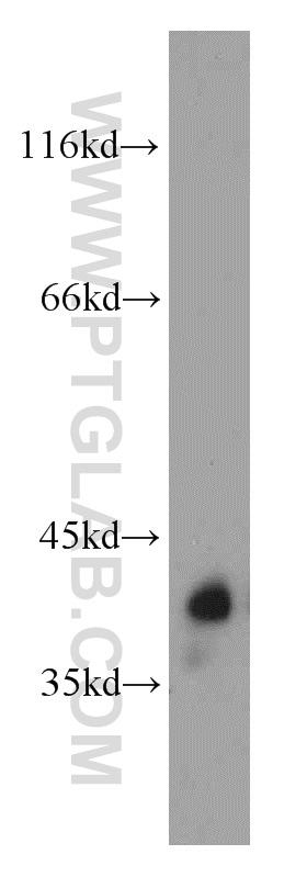 GNAT1 Antibody in Western Blot (WB)
