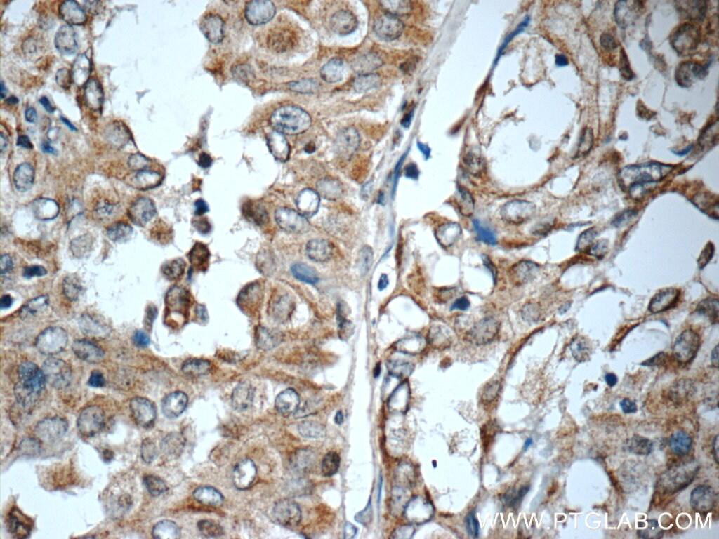 WNT5A/B Antibody in Immunohistochemistry (Paraffin) (IHC (P))