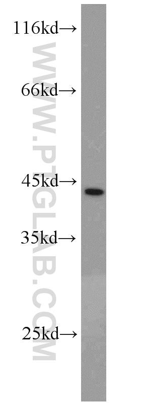 CSNK1A1 Antibody in Western Blot (WB)