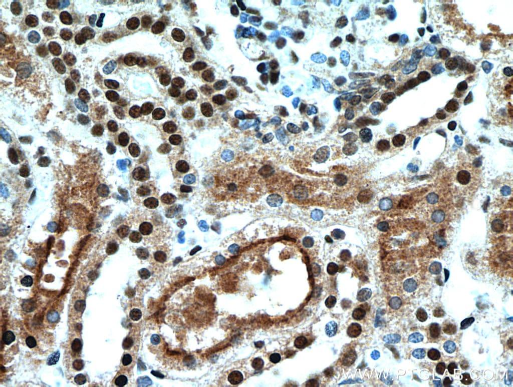 SET Antibody in Immunohistochemistry (Paraffin) (IHC (P))
