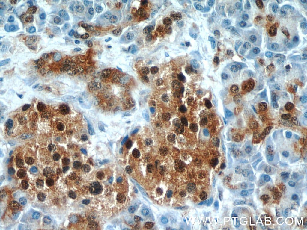 ENO1 Antibody in Immunohistochemistry (Paraffin) (IHC (P))