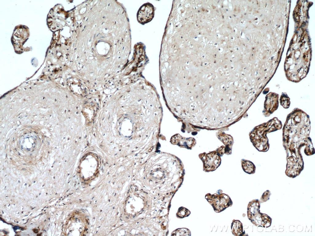 MAP4K4 Antibody in Immunohistochemistry (Paraffin) (IHC (P))