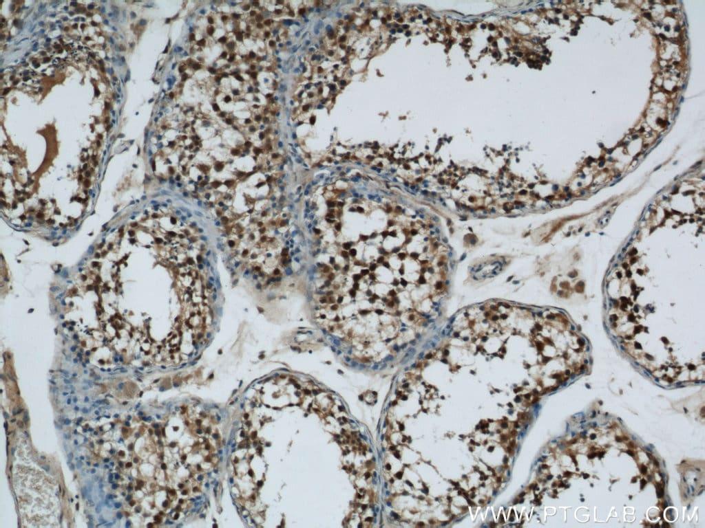 MORF4L1 Antibody in Immunohistochemistry (Paraffin) (IHC (P))